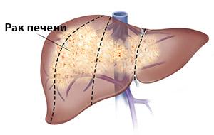 Стоимость лечения рака печени в Израиле, диагностика